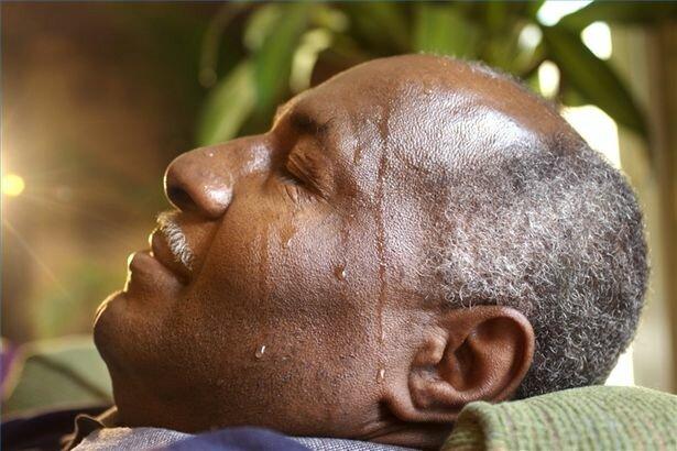 Потливость – выраженный признак гипогликемии, при котором нужна срочная помощь