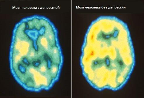 Мозг человека с депрессией