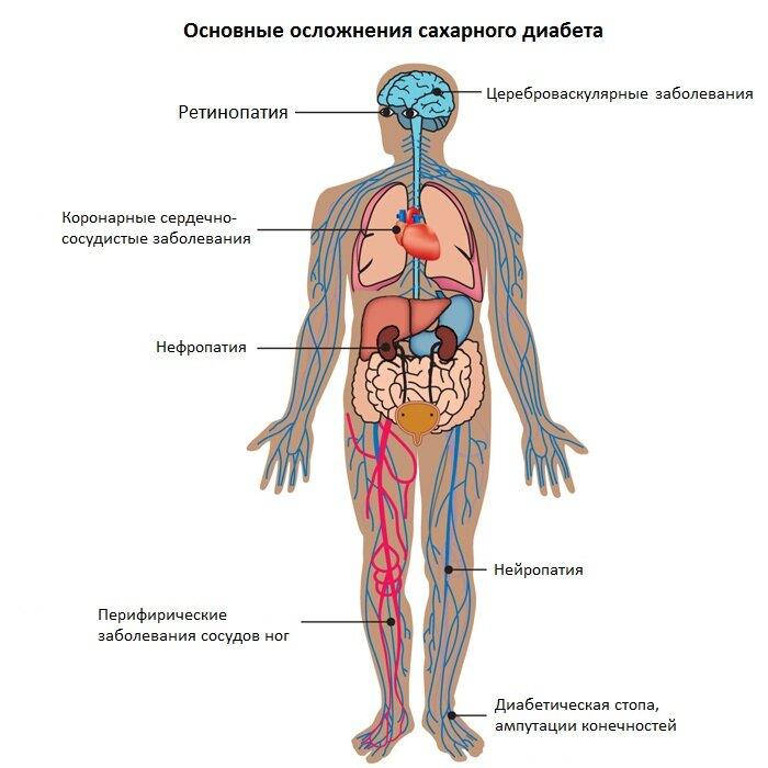 осложнения от диабета