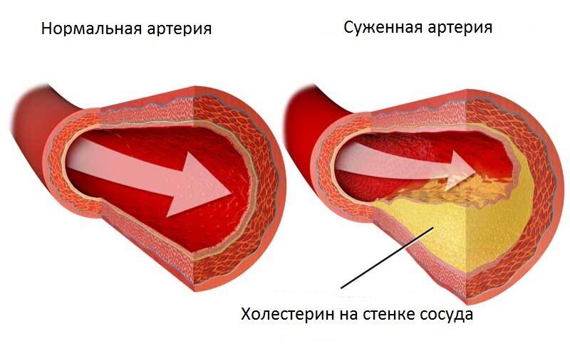 влияние повышенного холестерина на организм человека