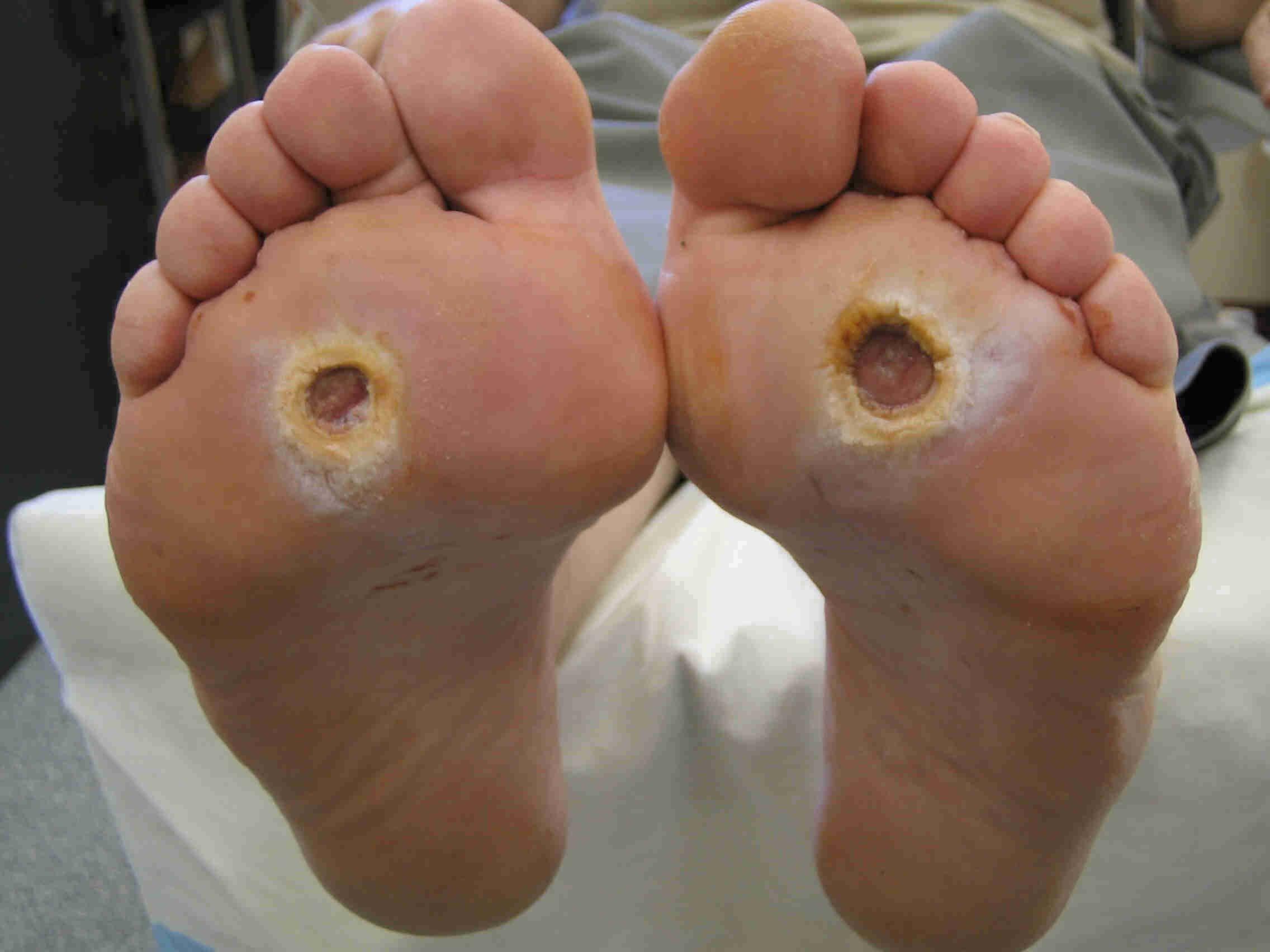 Влияние диабета на стопы и ноги