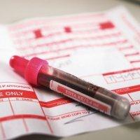 Анализ крови на гликированный гемоглобин HbA1c при сахарном диабете