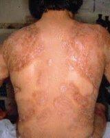 Заболевания кожи при сахарном диабете