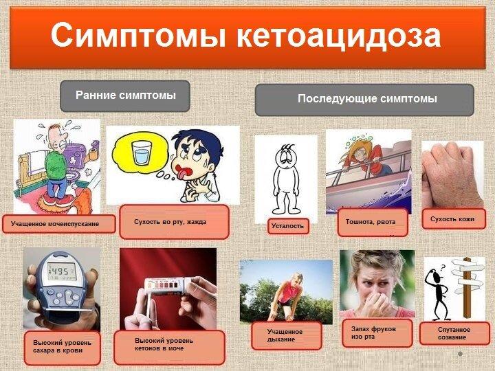 Признаки кетоацидоза при использования помпы